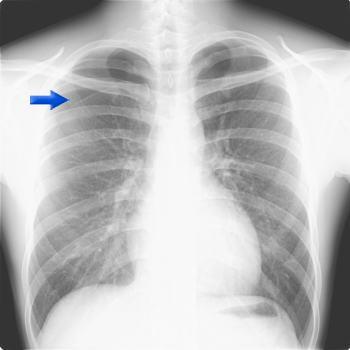 自然 治癒 気胸 新型肺炎コロナウイルスと気胸経験者の重症化の関係性について